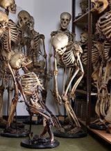 Skeletons affected by disease. Source: Museum Vrolik.