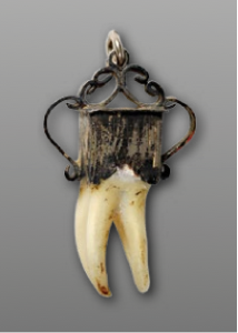19th century, silver and tooth. Deutsches Medizinhistorisches Museum Ingolstadt, Inv.-Nr.  12/028. Photograph: M. Kowalski.